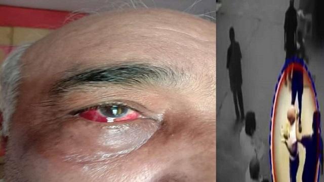 Video :- महाराष्ट्र में शिवसेना के गुंडों का राज कायम, सेना के रिटायर्ड अधिकारी को सरेआम पीटा